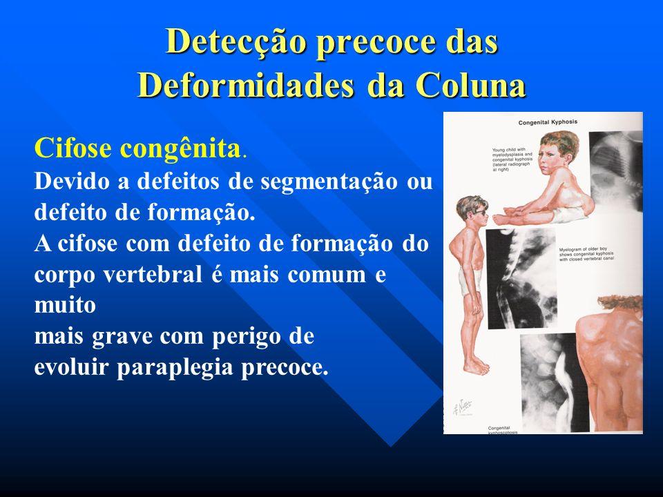 Curva rígida: Necessidade de dupla abordagem Detecção precoce das Deformidades da Coluna