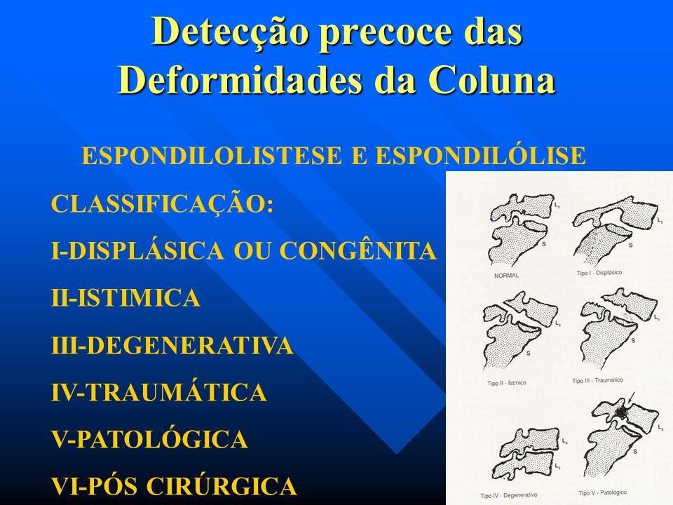 Detecção precoce das Deformidades da Coluna Espondilistese: deriva da palavra grega espondilos (coluna) e eolisthanein (escorregar) empregado em 1854