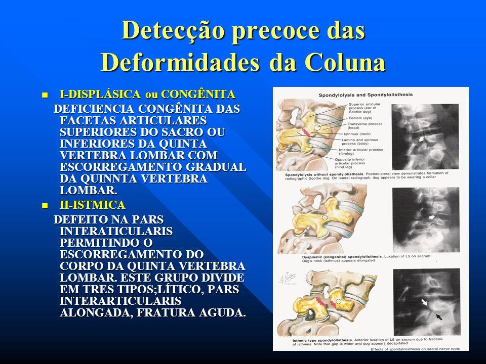 Detecção precoce das Deformidades da Coluna ESPONDILOLISTESE E ESPONDILÓLISE CLASSIFICAÇÃO: I-DISPLÁSICA OU CONGÊNITA II-ISTIMICA III-DEGENERATIVA IV-