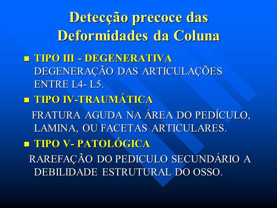 Detecção precoce das Deformidades da Coluna I-DISPLÁSICA ou CONGÊNITA I-DISPLÁSICA ou CONGÊNITA DEFICIENCIA CONGÊNITA DAS FACETAS ARTICULARES SUPERIOR