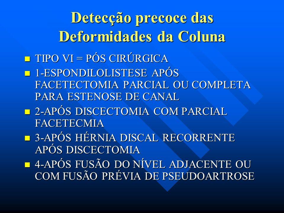 Detecção precoce das Deformidades da Coluna TIPO III - DEGENERATIVA DEGENERAÇÃO DAS ARTICULAÇÕES ENTRE L4- L5. TIPO III - DEGENERATIVA DEGENERAÇÃO DAS