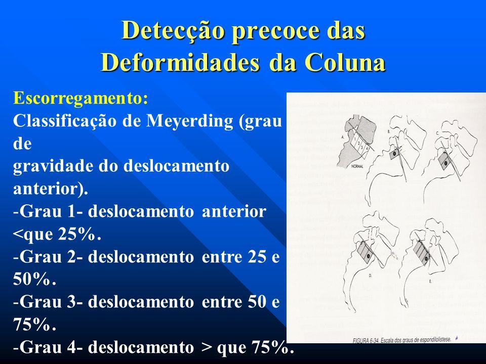 Detecção precoce das Deformidades da Coluna TIPO VI = PÓS CIRÚRGICA TIPO VI = PÓS CIRÚRGICA 1-ESPONDILOLISTESE APÓS FACETECTOMIA PARCIAL OU COMPLETA P