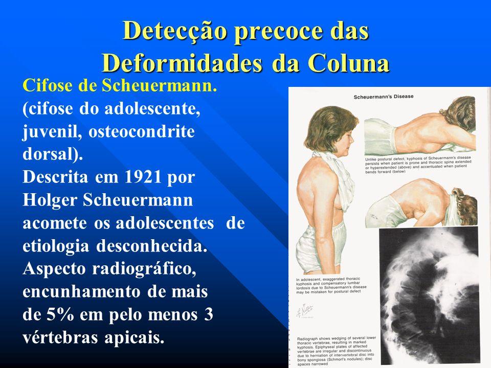 Detecção precoce das Deformidades da Coluna Exame clínico; Lombalgia,que deve-se a instabilidade local e à distensão dos ligamentos e cápsulas articul