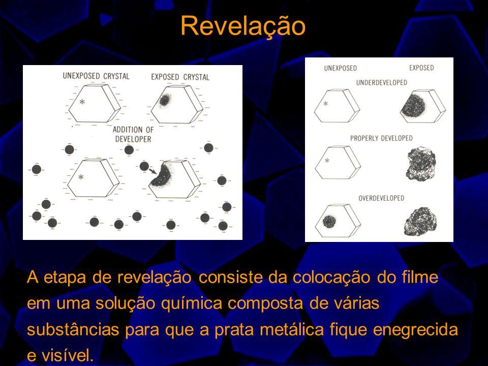 Revelação A etapa de revelação consiste da colocação do filme em uma solução química composta de várias substâncias para que a prata metálica fique en