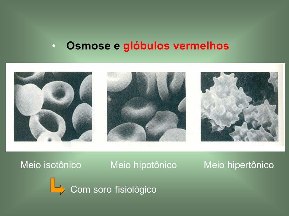 Osmose e glóbulos vermelhos Meio isotônicoMeio hipotônico Meio hipertônico Com soro fisiológico
