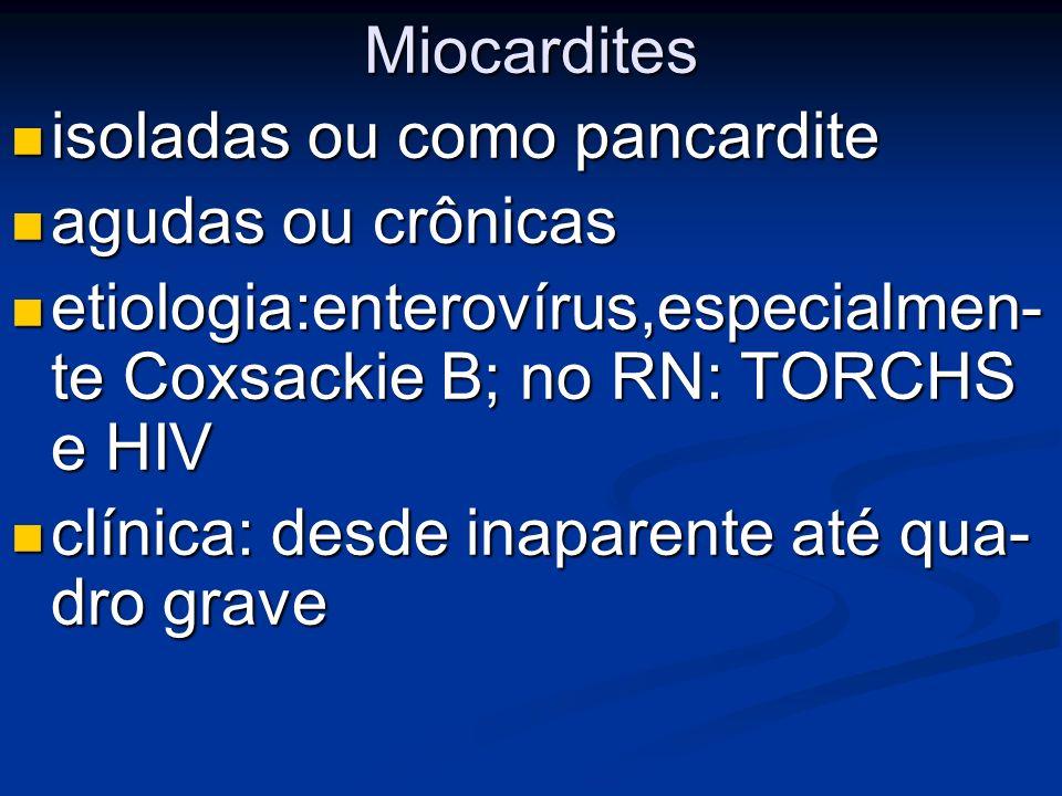 Miocardites isoladas ou como pancardite isoladas ou como pancardite agudas ou crônicas agudas ou crônicas etiologia:enterovírus,especialmen- te Coxsac