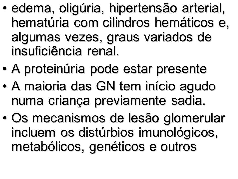 edema, oligúria, hipertensão arterial, hematúria com cilindros hemáticos e, algumas vezes, graus variados de insuficiência renal.edema, oligúria, hipe