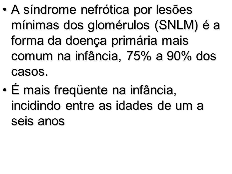 A síndrome nefrótica por lesões mínimas dos glomérulos (SNLM) é a forma da doença primária mais comum na infância, 75% a 90% dos casos.A síndrome nefr