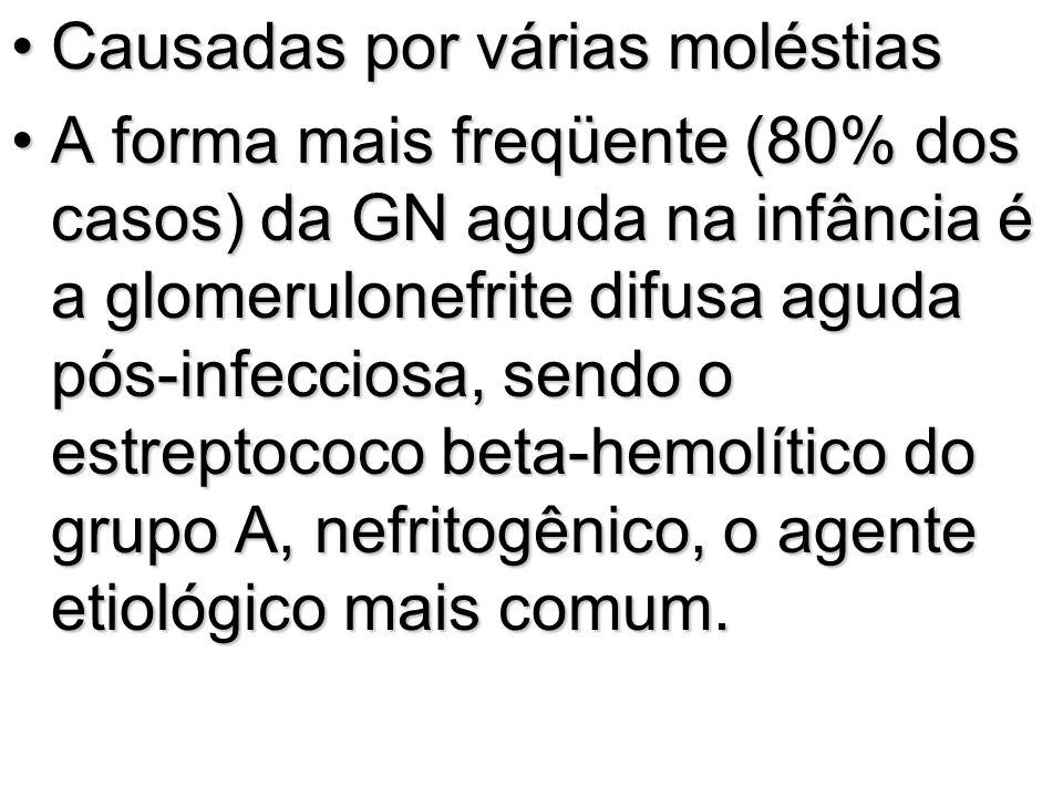 Características laboratoriais Volume urinário diminuídoVolume urinário diminuído proteinúria de 24 horas de 2 a 3 g até mais de 10 gproteinúria de 24 horas de 2 a 3 g até mais de 10 g lipidúrialipidúria cilindrúriacilindrúria proteínas séricas inferiores a 5 g/dl com albuminemia abaixo de 2,5 g/dlproteínas séricas inferiores a 5 g/dl com albuminemia abaixo de 2,5 g/dl