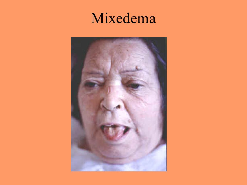 Mixedema