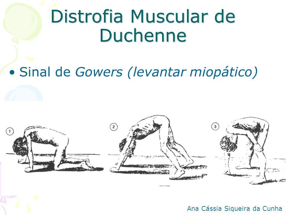 Distrofia Muscular de Duchenne Sinal de Gowers (levantar miopático) Ana Cássia Siqueira da Cunha