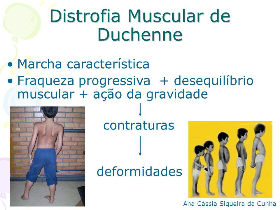 Distrofia Muscular de Duchenne Marcha característica Fraqueza progressiva + desequilíbrio muscular + ação da gravidade contraturas deformidades Ana Cá