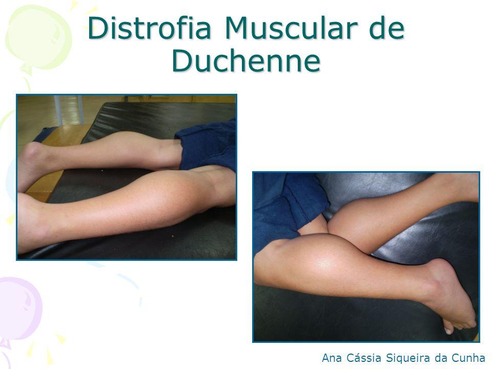Distrofia Muscular de Duchenne Ana Cássia Siqueira da Cunha