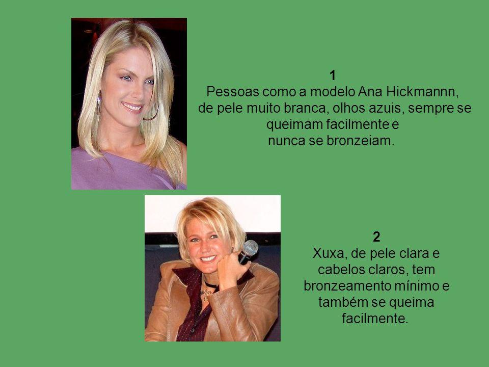 1 Pessoas como a modelo Ana Hickmannn, de pele muito branca, olhos azuis, sempre se queimam facilmente e nunca se bronzeiam. 2 Xuxa, de pele clara e c