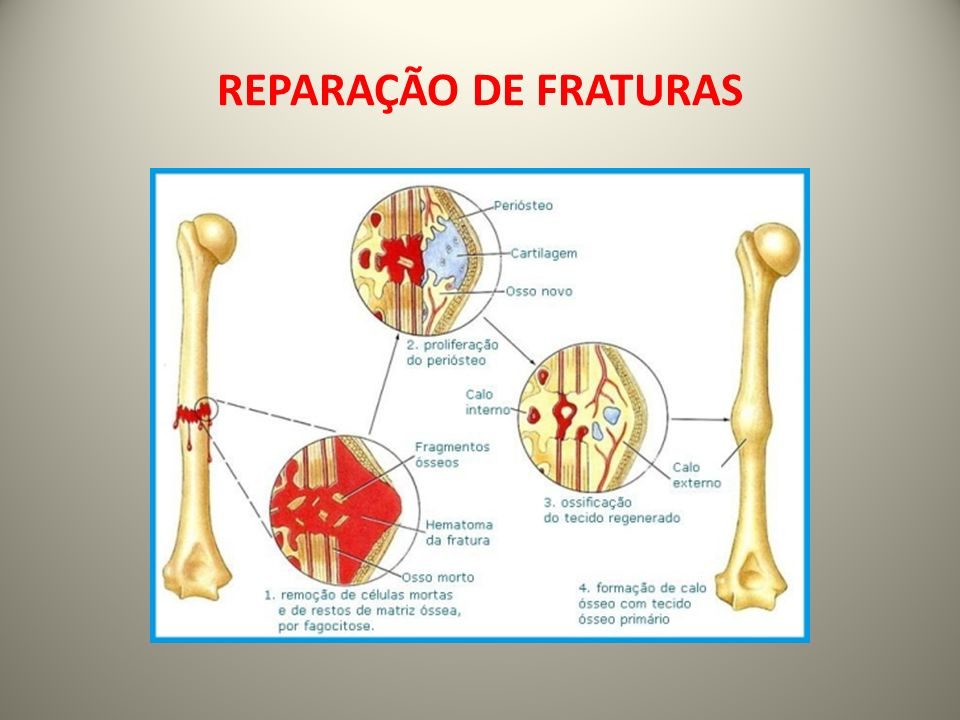 REPARAÇÃO DE FRATURAS