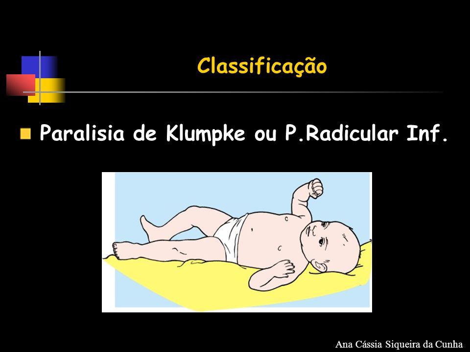 Classificação Paralisia de Klumpke ou P.Radicular Inf. Ana Cássia Siqueira da Cunha