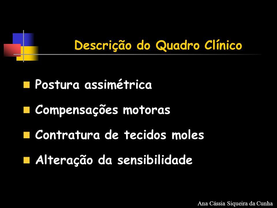 Postura assimétrica Compensações motoras Contratura de tecidos moles Alteração da sensibilidade Descrição do Quadro Clínico Ana Cássia Siqueira da Cunha