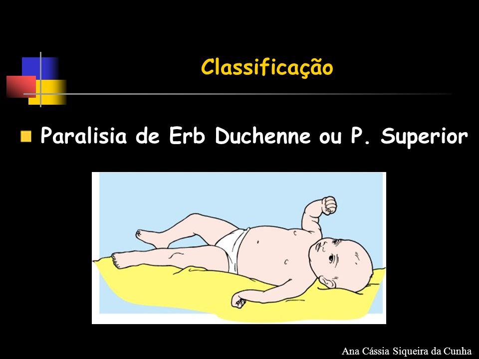 Classificação Paralisia de Erb Duchenne ou P. Superior Ana Cássia Siqueira da Cunha