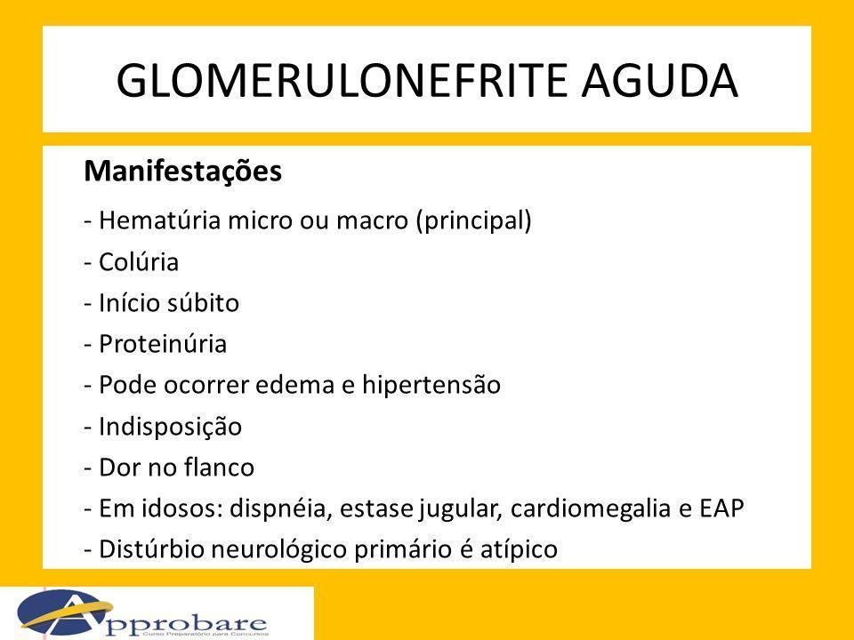 GLOMERULONEFRITE AGUDA Manifestações - Hematúria micro ou macro (principal) - Colúria - Início súbito - Proteinúria - Pode ocorrer edema e hipertensão