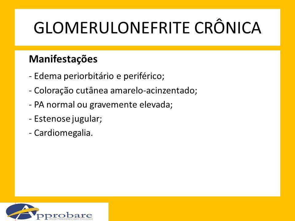 GLOMERULONEFRITE CRÔNICA Manifestações - Edema periorbitário e periférico; - Coloração cutânea amarelo-acinzentado; - PA normal ou gravemente elevada;