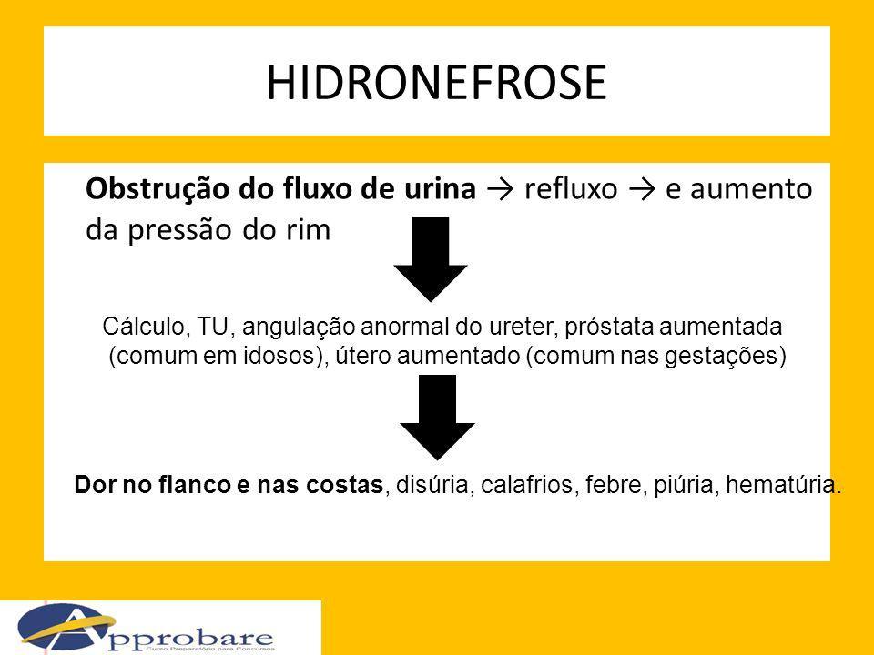 HIDRONEFROSE Obstrução do fluxo de urina refluxo e aumento da pressão do rim Cálculo, TU, angulação anormal do ureter, próstata aumentada (comum em id