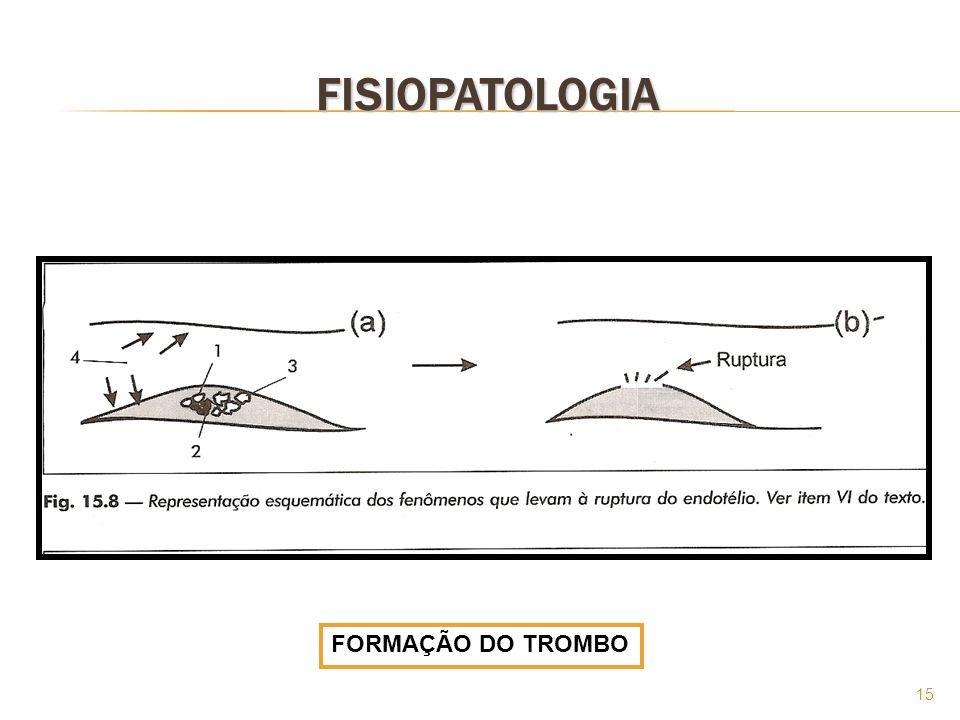 15 FISIOPATOLOGIA FORMAÇÃO DO TROMBO