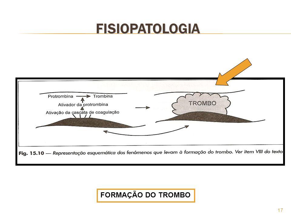 17 FISIOPATOLOGIA FORMAÇÃO DO TROMBO