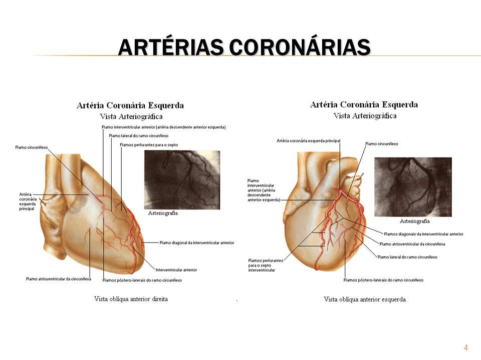 45 INFARTO AGUDO DO MIOCÁRDIO EXAMES COMPLEMENTARES CATETERISMO E ANGIOGRAFIA Um cateter radiopaco é inserido através da artéria ou veia femoral ou artéria braquial.