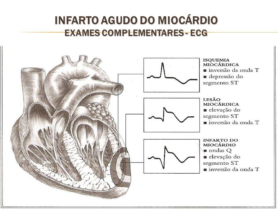43 INFARTO AGUDO DO MIOCÁRDIO EXAMES COMPLEMENTARES - ECG