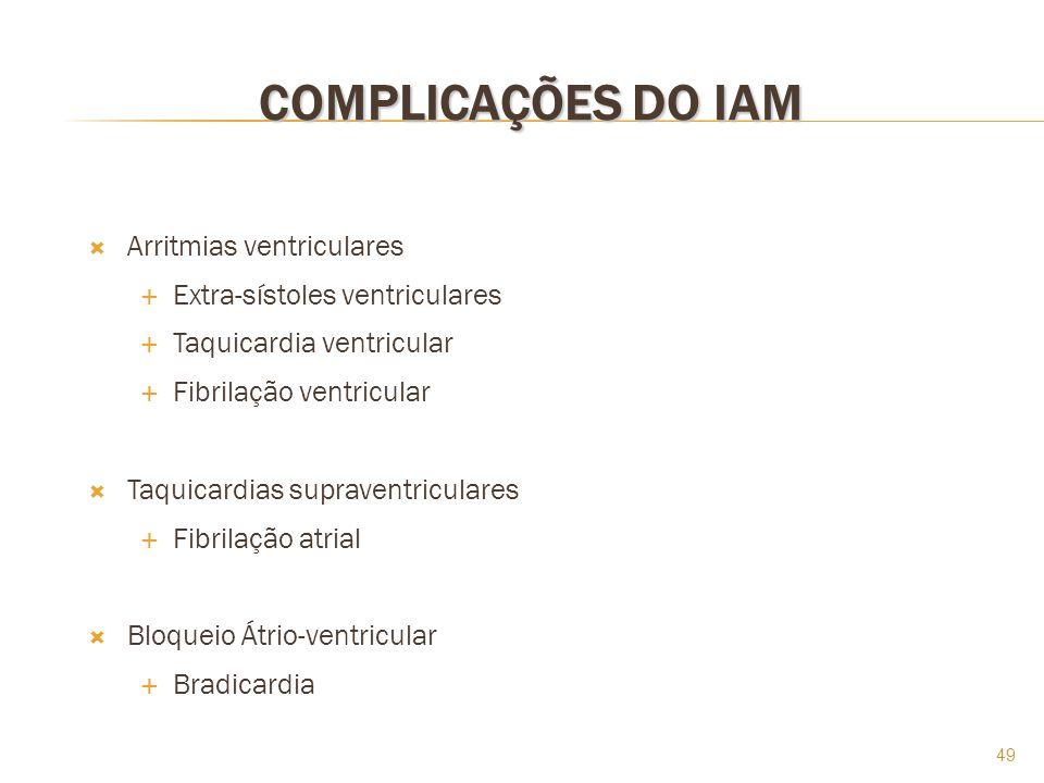 49 COMPLICAÇÕES DO IAM Arritmias ventriculares Extra-sístoles ventriculares Taquicardia ventricular Fibrilação ventricular Taquicardias supraventricul