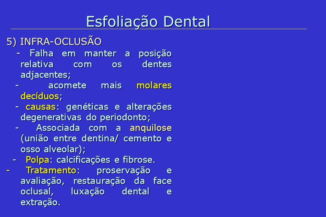 Esfoliação Dental 5) INFRA-OCLUSÃO - F alha em manter a posição relativa com os dentes adjacentes; - F alha em manter a posição relativa com os dentes