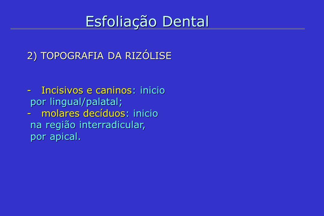 Esfoliação Dental 2) TOPOGRAFIA DA RIZÓLISE -Incisivos e caninos: inicio por lingual/palatal; por lingual/palatal; -molares decíduos: inicio na região
