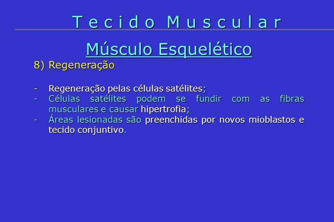 Músculo Esquelético 8) Regeneração -Regeneração pelas células satélites; -Células satélites podem se fundir com as fibras musculares e causar hipertro