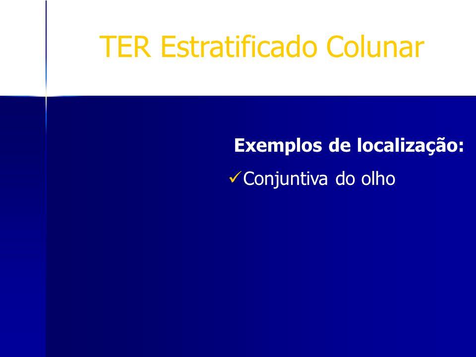 TER Estratificado Colunar Exemplos de localização: Conjuntiva do olho