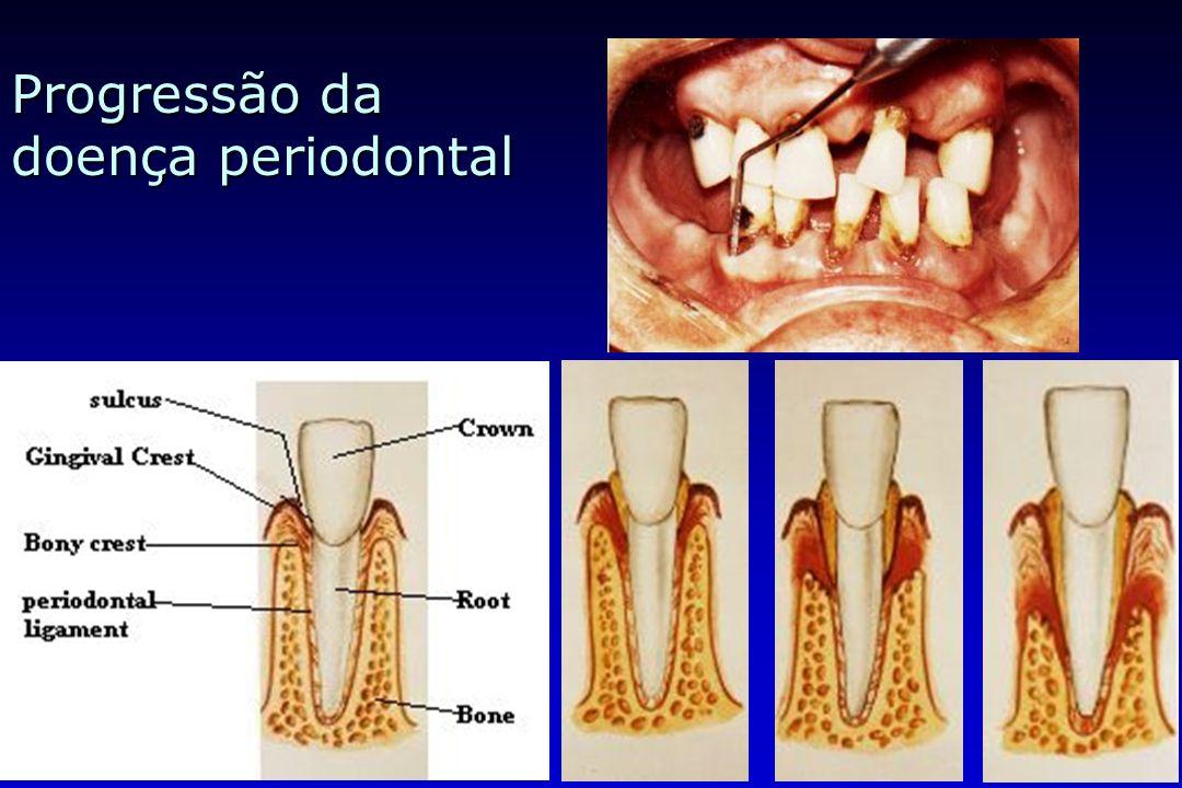 Progressão da doença periodontal