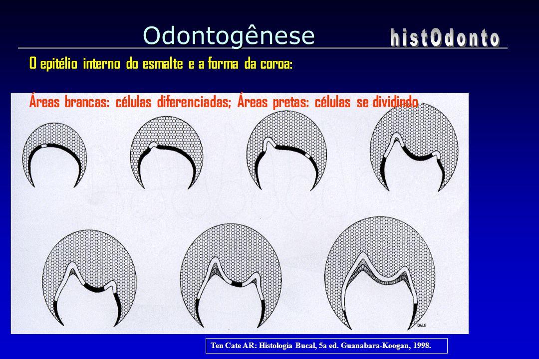 Ten Cate AR: Histologia Bucal, 5a ed. Guanabara-Koogan, 1998. Odontogênese O epitélio interno do esmalte e a forma da coroa: Áreas brancas: células di