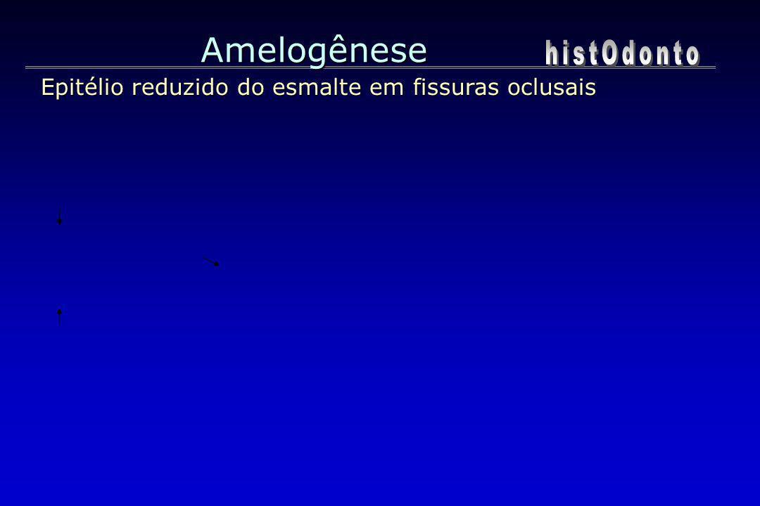 Amelogênese Epitélio reduzido do esmalte em fissuras oclusais