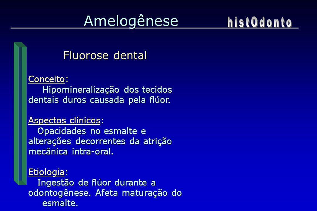 Fluorose dental Conceito : Hipomineralização dos tecidos dentais duros causada pela flúor. Aspectos clínicos: Opacidades no esmalte e Opacidades no es