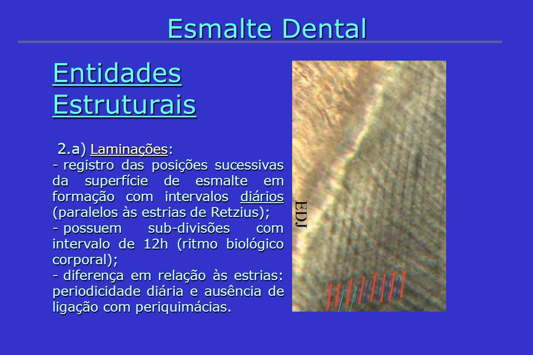 Entidades Estruturais 2.a) Laminações: 2.a) Laminações: - registro das posições sucessivas da superfície de esmalte em formação com intervalos diários