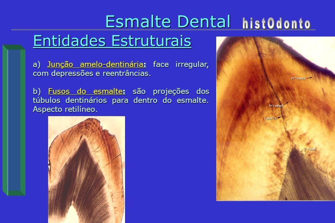 Entidades Estruturais a) Junção amelo-dentinária: face irregular, com depressões e reentrâncias. b) Fusos do esmalte: são projeções dos túbulos dentin
