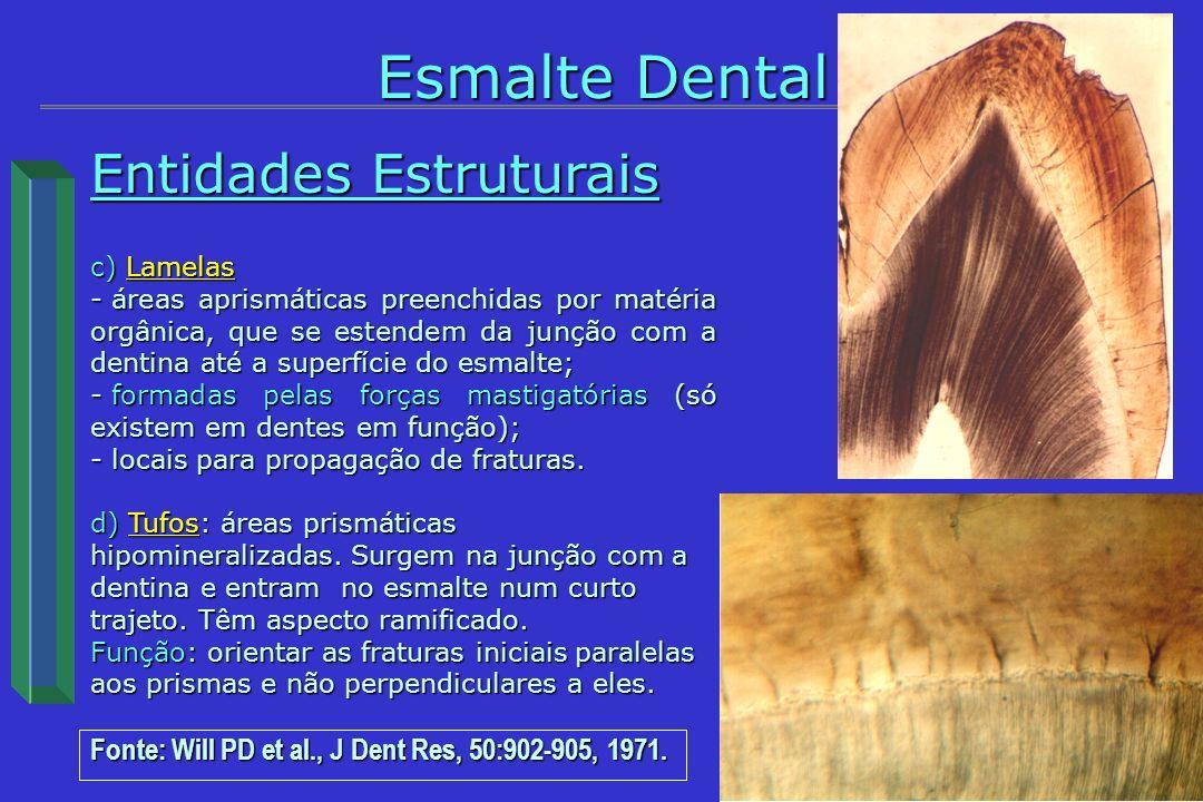 Entidades Estruturais c) Lamelas - áreas aprismáticas preenchidas por matéria orgânica, que se estendem da junção com a dentina até a superfície do es
