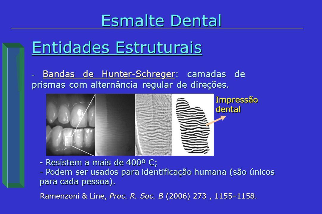 Entidades Estruturais - Bandas de Hunter-Schreger: camadas de prismas com alternância regular de direções. Esmalte Dental Ramenzoni & Line, Proc. R. S