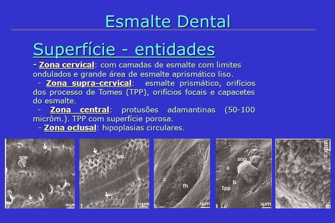 - Zona cervical: com camadas de esmalte com limites ondulados e grande área de esmalte aprismático liso. - Zona supra-cervical: esmalte prismático, or