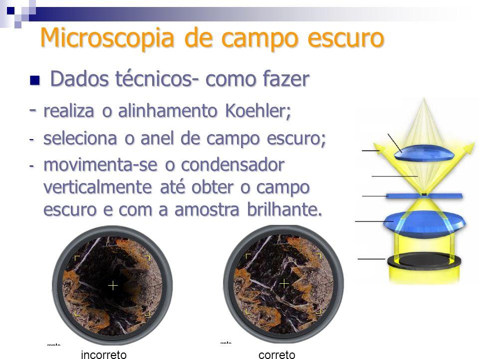 Dados técnicos- como fazer Dados técnicos- como fazer - realiza o alinhamento Koehler; - seleciona o anel de campo escuro; - movimenta-se o condensado