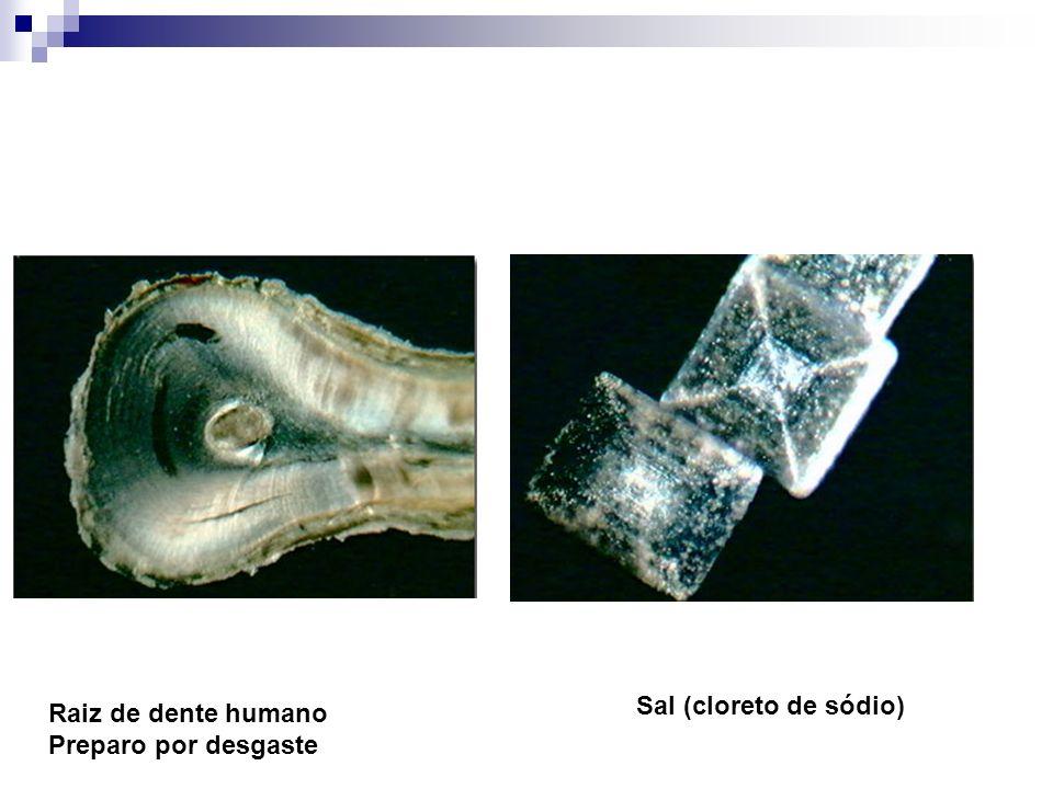 Raiz de dente humano Preparo por desgaste Sal (cloreto de sódio)