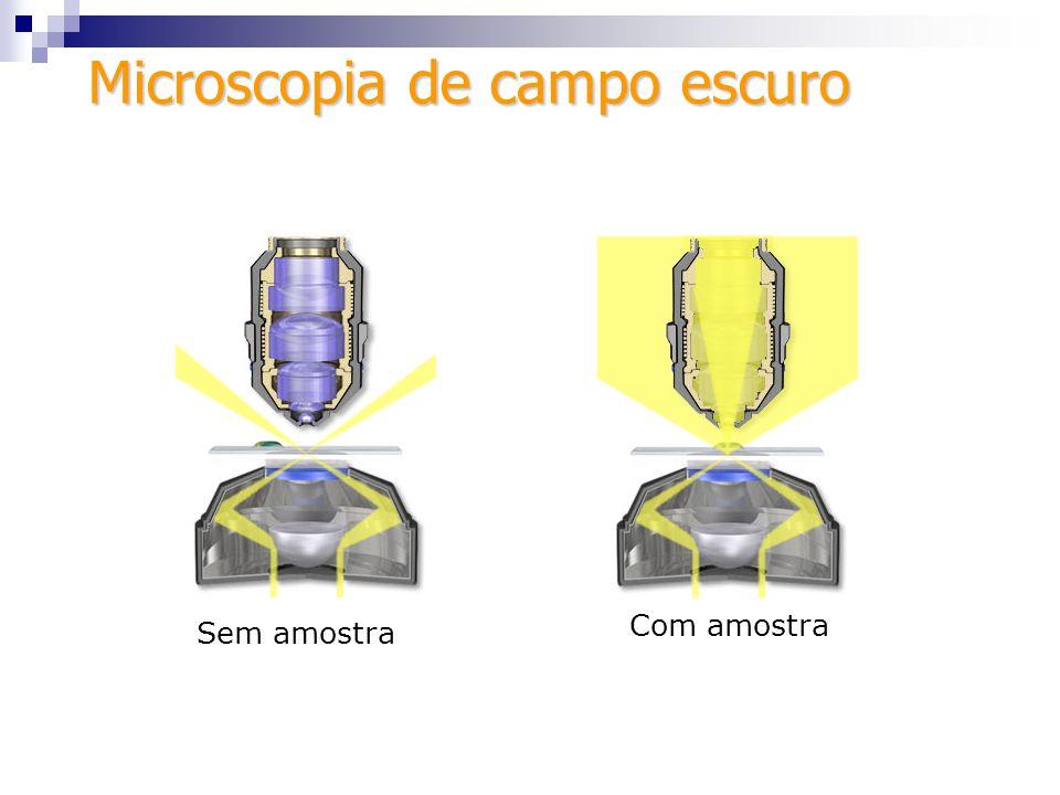 Dados técnicos Dados técnicos 1) A cessórios obrigatórios: anel de campo escuro para o condensador; Não há objetivas especiais para esta técnica.