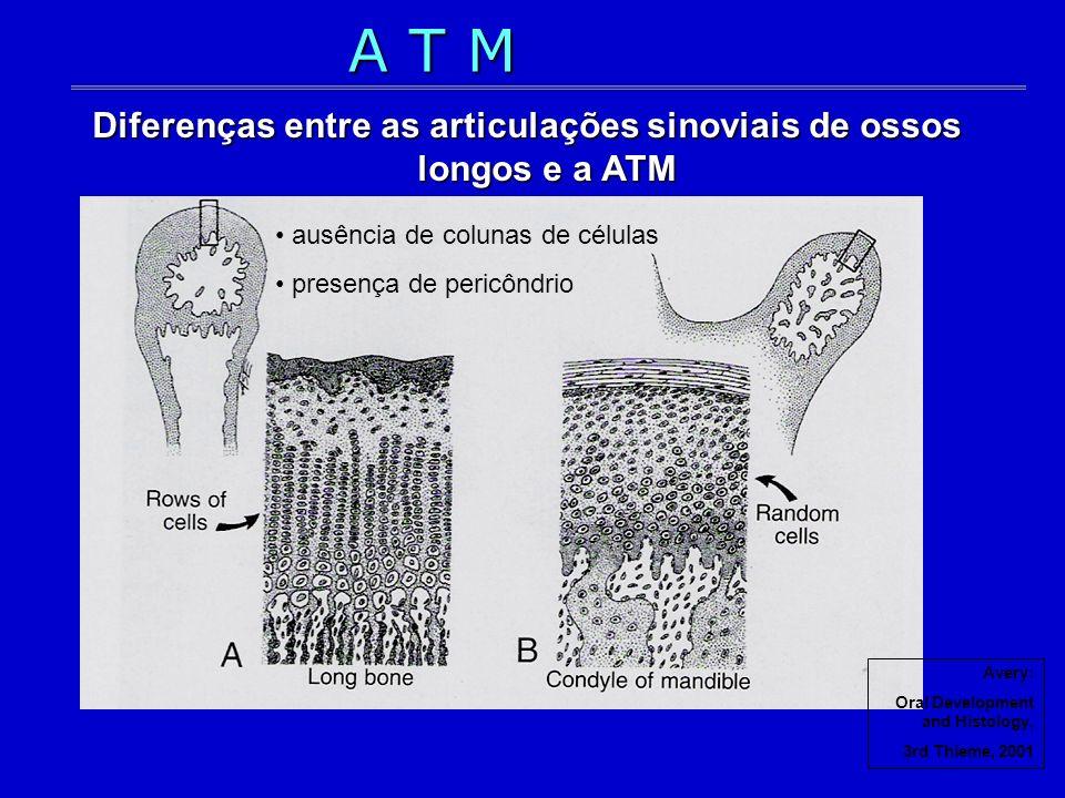 Avery: Oral Development and Histology, 3rd Thieme, 2001 Diferenças entre as articulações sinoviais de ossos longos e a ATM ausência de colunas de célu