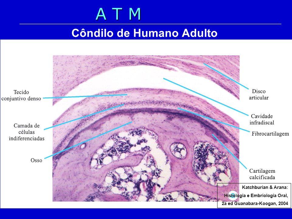 Côndilo de Humano Adulto Katchburian & Arana: Histologia e Embriologia Oral, 2a ed Guanabara-Koogan, 2004 A T M
