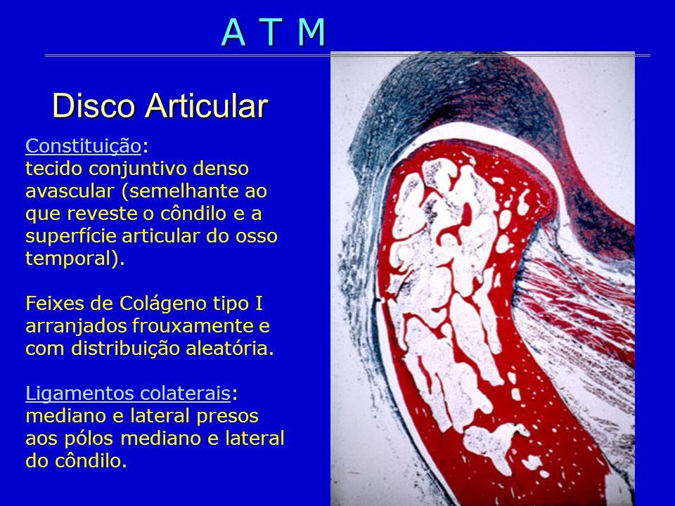 Disco Articular Constituição: tecido conjuntivo denso avascular (semelhante ao que reveste o côndilo e a superfície articular do osso temporal). Feixe