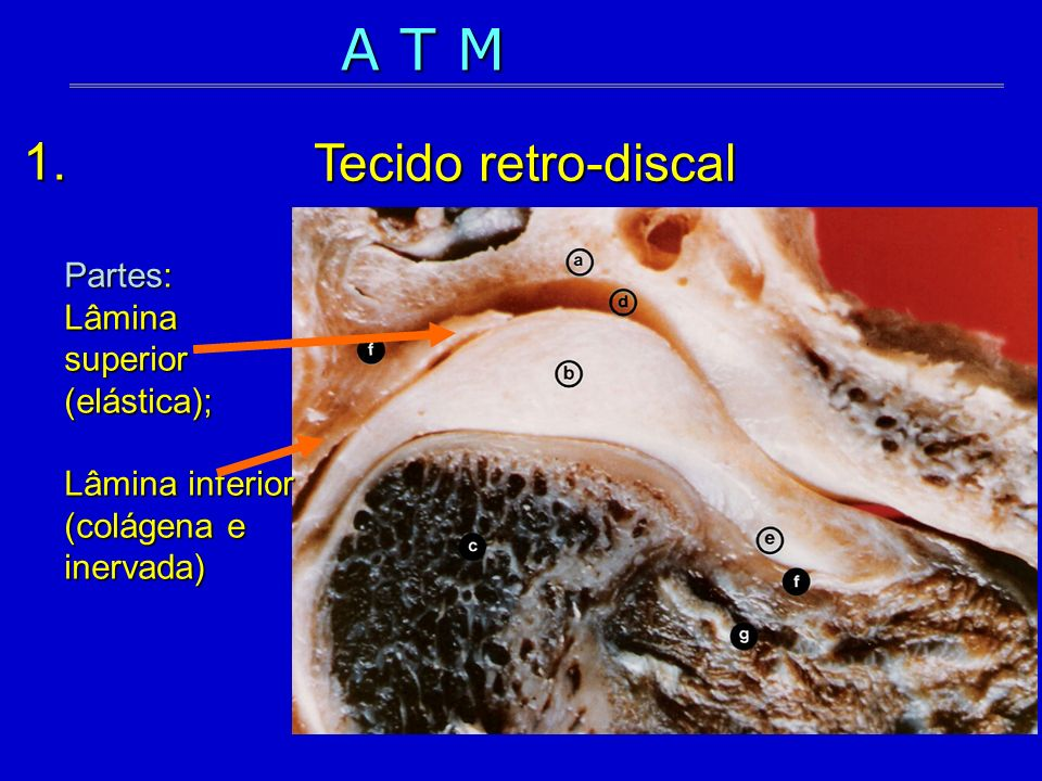 1. Partes: Lâmina superior (elástica); Lâmina inferior (colágena e inervada) A T M Tecido retro-discal